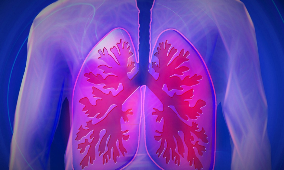 Iron is a Major Risk Factor for Fungal Infections in Lung