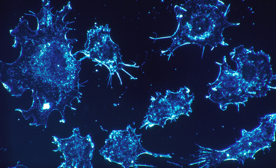 Engineered T Cells Shown to Eliminate Paediatric Brain Cancer